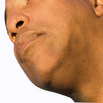 African-American man with razor bumps resolved after treatment with Bump & Blemish